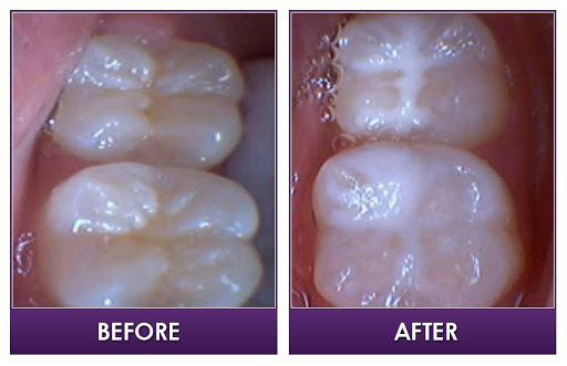 Euthymol Toothpaste Side Effects
