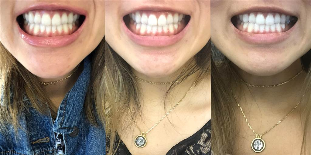 Opatra Teeth Whitening Reviews