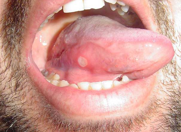 How Long For Canker Sore To Heal